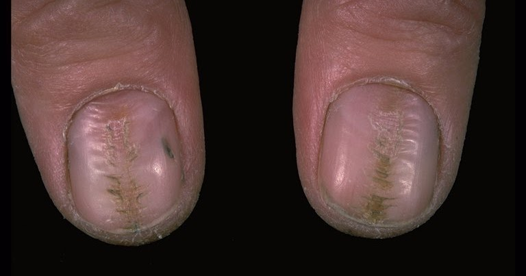 causes of splitting nails #10