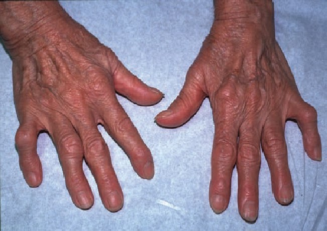 study medical photos a 70 year old woman presents with pain and