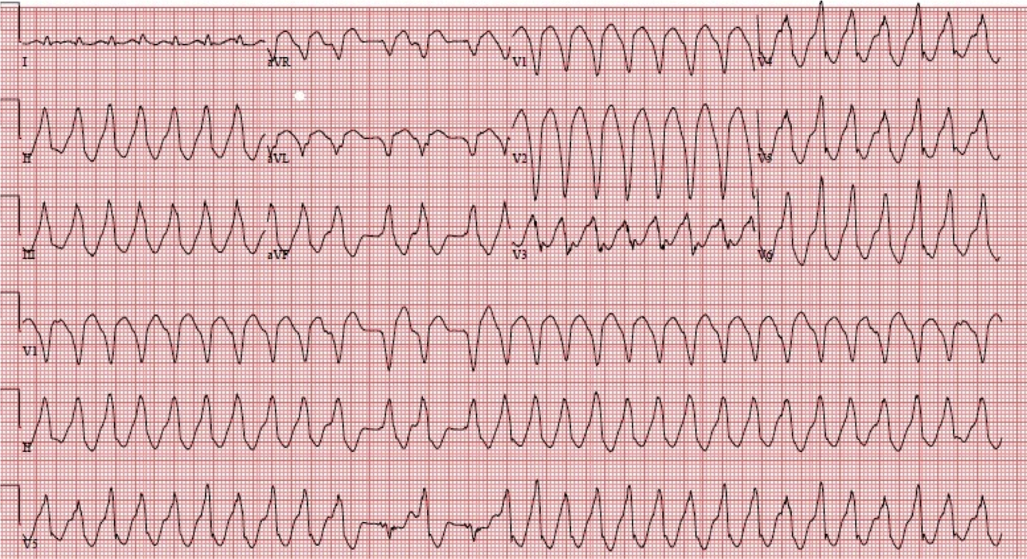 dr smith s ecg blog ed case of catecholaminergic polymorphic
