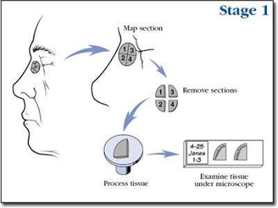 Cirugia de mohs