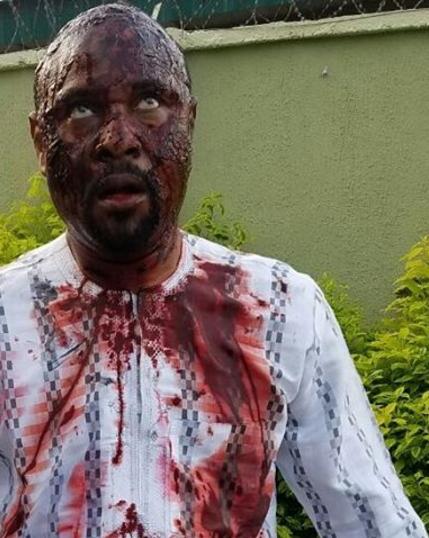 thugs attack saidi balogun