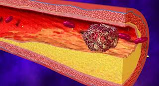 cara mengatasi pembekuan darah