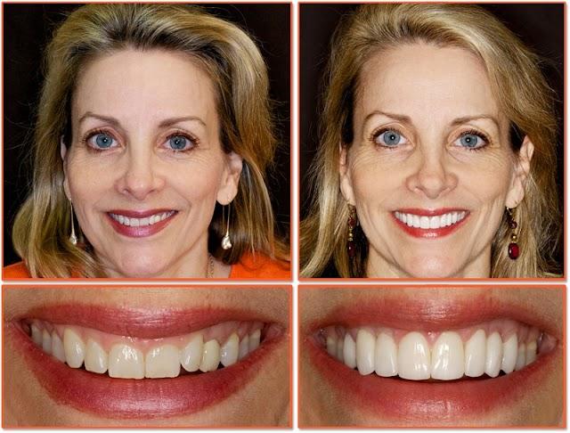 Làm răng sứ Veneer với sứ 3D Zirconia 5.000.000/răng