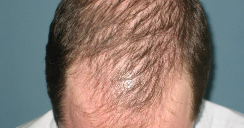 Amazing Homeopathic medicine combination that activates hair