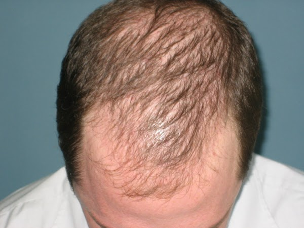 Amazing Homeopathic medicine combination that activates hair follicle , regrow hair and stop further hairloss, Try it and Make Possible to impossible for bald head