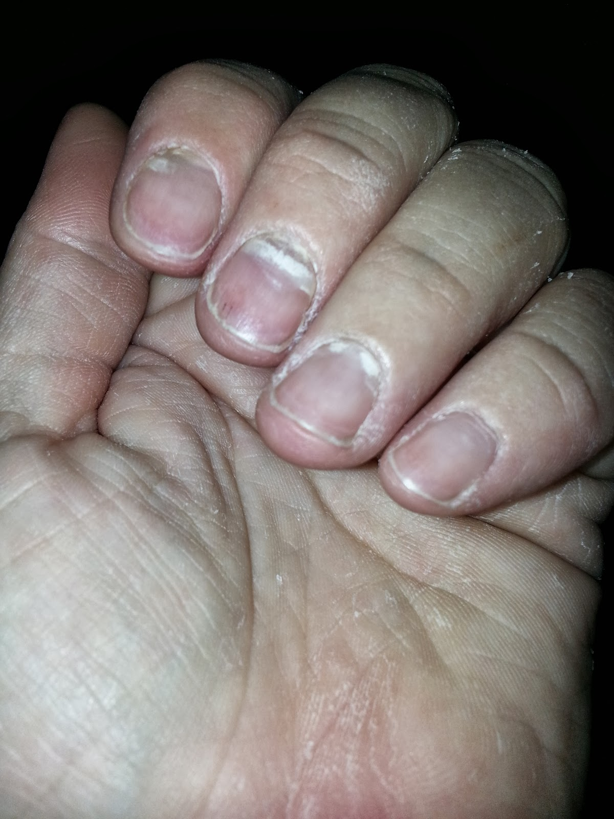 Adult Hand Foot And Mouth Disease