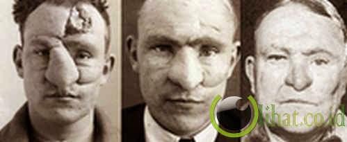 William M Spreckley: Operasi Hidung
