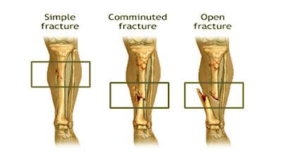 Fracture, ভঙ্গ; ফাটা