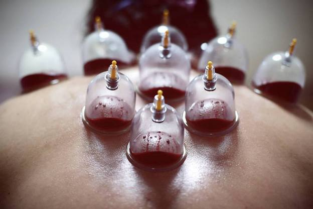 Hijama in Urdu | Benefits of Hijama for Health - Urdu ...