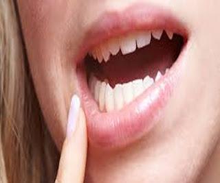 tips cara mengobati sariawan di lidah alami dengan cepat orang sakit bayi