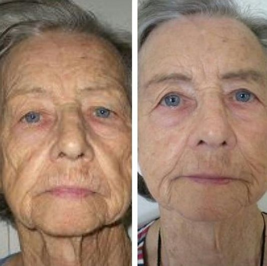 Facial muscle toning exercises the ideal