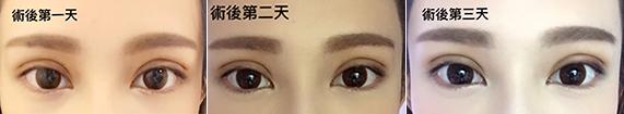 彤顏診所-雙眼皮-訂書針雙眼皮-縫雙眼皮-電眼-桃園雙眼皮推薦-中壢雙眼皮推薦-雙眼皮手術費用-雙眼皮消腫