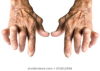 gathiya ka desi ilaj in hindi,  arthritis se bachne ke upay,  gathiya rog medicine,  rheumatoid arthritis treatment in ayurveda in hindi,  arthritis kya hai hindi me,  prevention of arthritis in hindi,  gathiya ki dawa