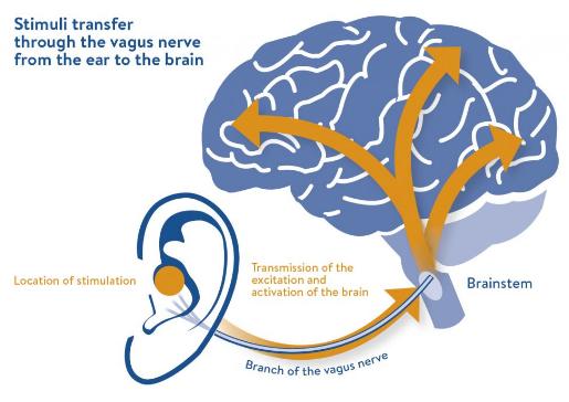 図:経皮的耳迷走神経刺激
