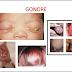 Pengertian Definisi Penyebab Dan Gejala Klinis serta Pengobatan Gonore Menurut Ilmu Kedokteran