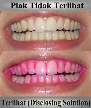 Pengertian Dental Plak - Education Articles