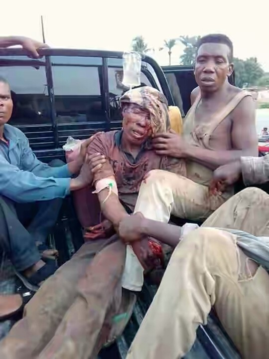 Fulani Herdsmen Butcher A Farmer In Ebonyi State (Graphic Photo) 3