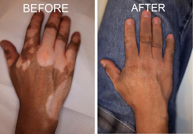 Vitiligo y la Dieta sin Gluten
