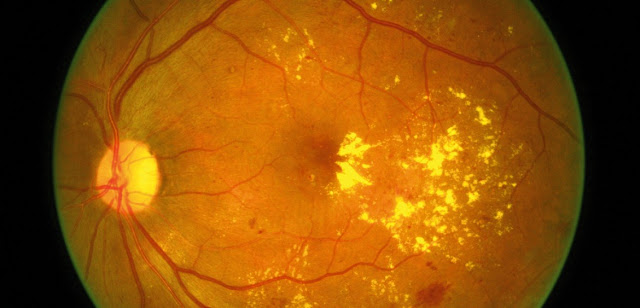 Retina image of ARMD
