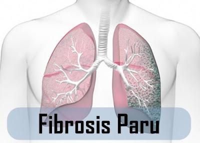 Cara Menyembuhkan Fibrosis Paru Secara Alami