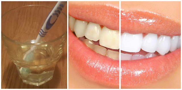 Natural Teeth Whitening With Just One Ingredient (3 Minutes Recipe)
