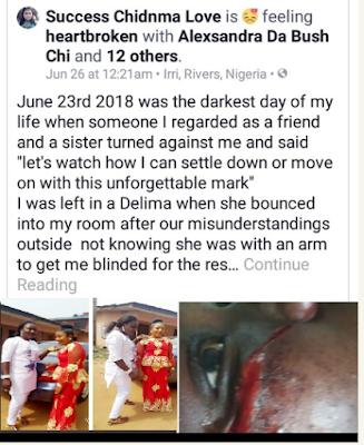 Success Chidinma Love, Graphic Photos: Bestie stabs Friend Below The Eye In A Bid To get Her Blind in Irri, Rivers State.