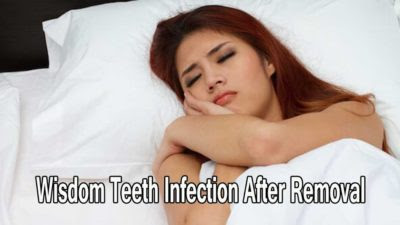 Wisdom teeth infection after removal