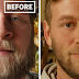 10+ Before - And - After Pics Show What Happens When You Stop Drinking