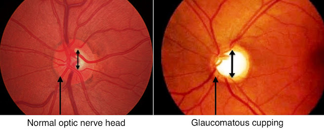 glaucoma disc cupping