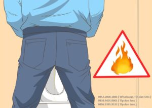Merk Obat kencing terasa panas paling ampuh di apotik