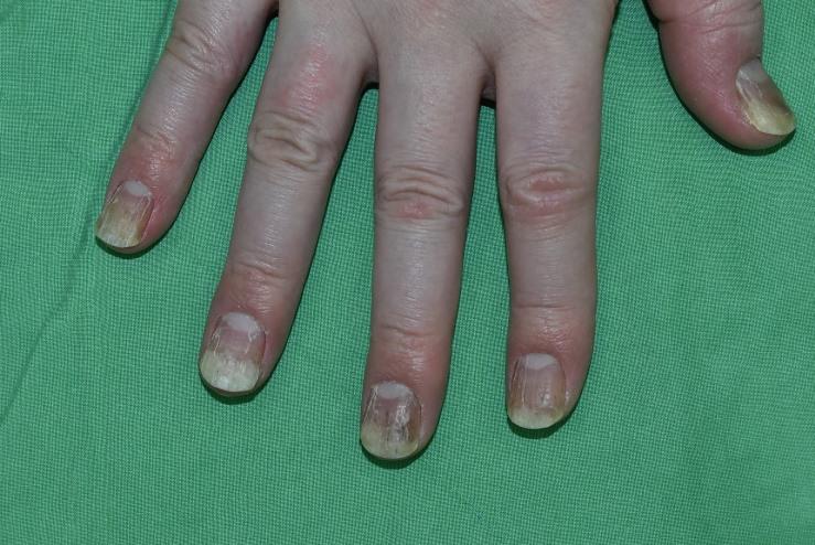 乾癬(psoriasis)