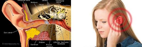 Cara Ampuh Atasi Telinga Berdenging 100% Aman, Efektif Dan Cepat Sampai Tuntas