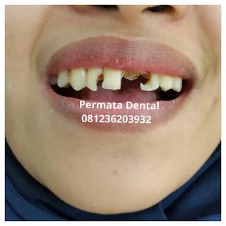 gambar foto contoh sebelum dan sesudah veneer gigi kelinci buatan manis cantik bali jember banyuwangi murah berkualitas di PERMATA DENTAL gambar gigi rusak yang di veneer gigi yang tidak rapi gigi renggang gigi patah cuil rompal pendek karies hitam kuning