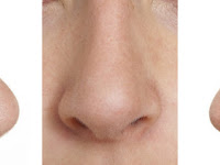 Cara Mudah Memancungkan Hidung Tanpa Operasi