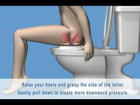 5 ways of preventing Piles (Hemorrhoids)