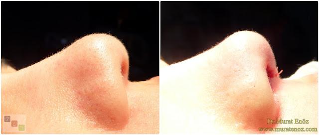 Açık teknik burun ucu estetiği - Burun ucu kaldırma - Burun ucu küçültme - Burun ucu daraltma - Burun ucu operasyonu öncesi ve sonrası - Burun ucu düşüklüğü tedavisi - Burun ucu estetiği ameliyatı izle - Burun ucu estetiği öncesi ve sonrası görselleri - Açık teknik burun ucu operasyonu - Nose tip lifting in İstanbul - Nose tip plasty operation in İstanbul - Tip plasty in İstanbul - Nose tip reshaping in İstanbul - Nose tip surgery in Turkey - Open technique tip plasty operation in İstanbul - Burun ucu estetiği Bakırköy - Burun kaldırma