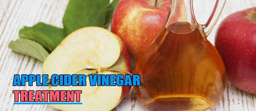 Apple Cider Vinegar Treatment for Blackheads