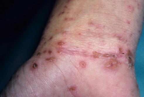 Scabies, salah satu contoh penyakit menular pada anak