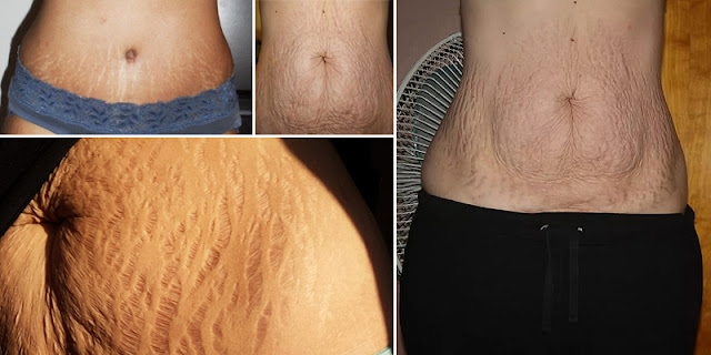Remove Stretch Marks Easily By Using These Home Methods!