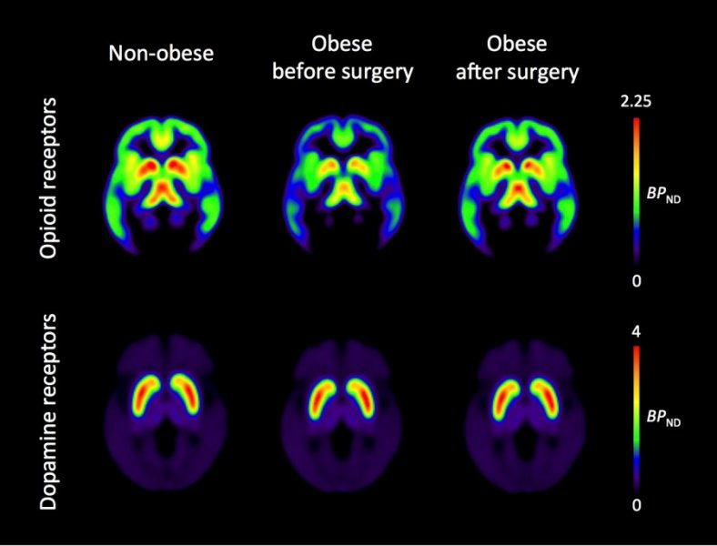 The Neurocritic Obesity Is Not Like Being Quot Addicted To Food Quot