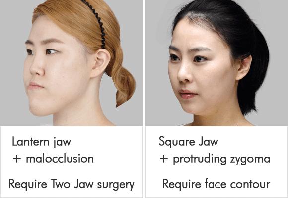 짱이뻐! - Korean Two Jaw Surgery vs Korean Face Contouring