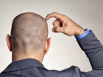 Πότε αρχίζουν να πέφτουν τα μαλλιά στους άνδρες;;