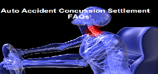 concussion settlement auto FAQs