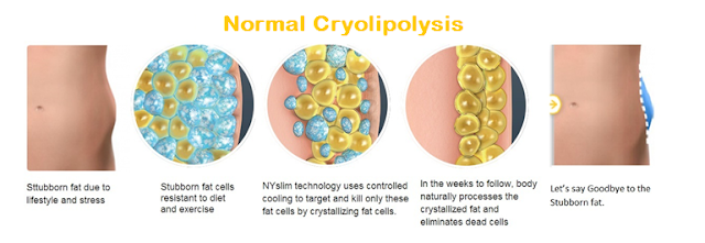 Normal Cryolipolysis
