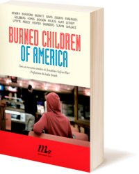 burned-children-of-america