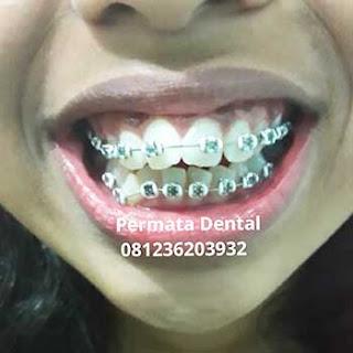 gambar, pasang, behel, bracket, kawat gigi, sesudah,