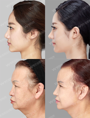 RhinoplastyBefore and After Photos,