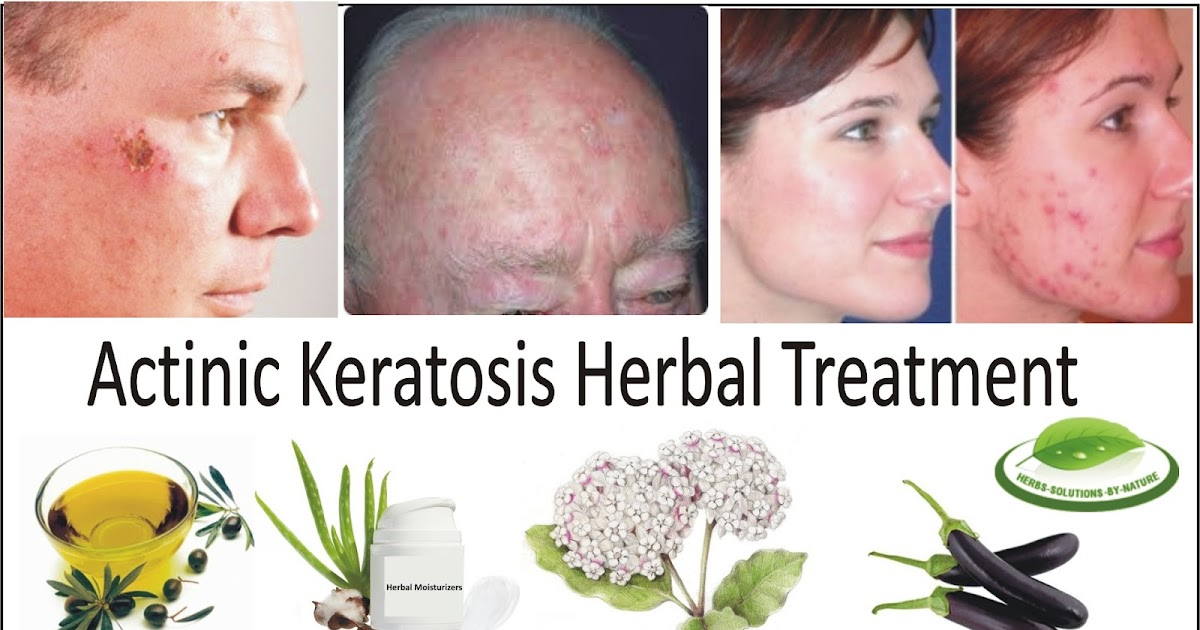 How To Cure Actinic Keratoses Naturally