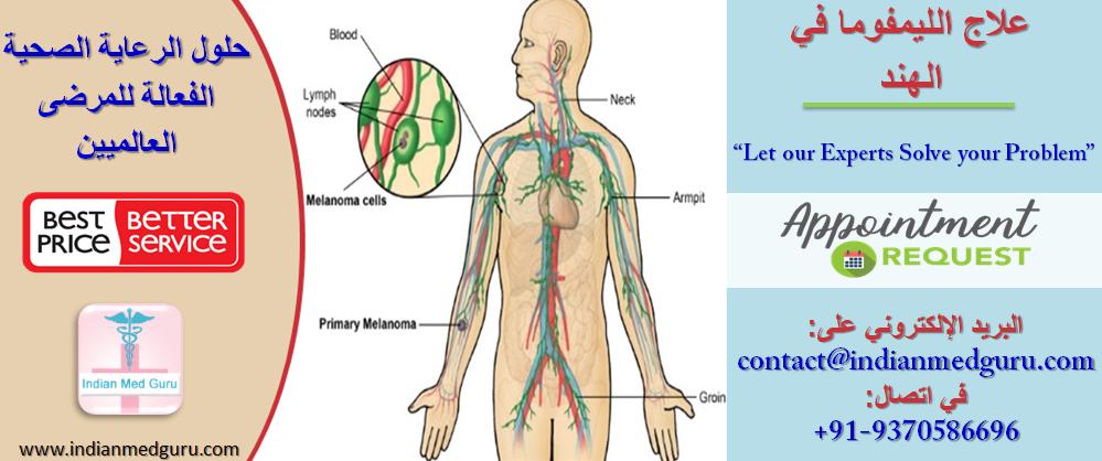 الشرق الأوسط 2 الهند 4 جولة صحية علاج ورم الغدد اللمفاوية في الهند حلول صحية فعالة من حيث التكلفة للمرضى العالميين