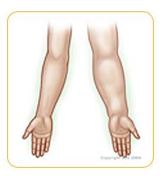 Resultado de imagen para linfedema brazo